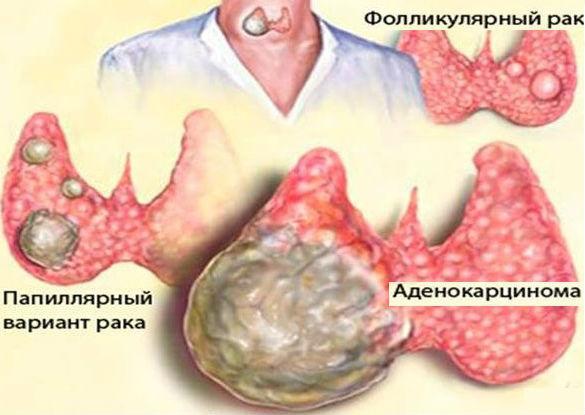 Виды и формы рака щитовидки