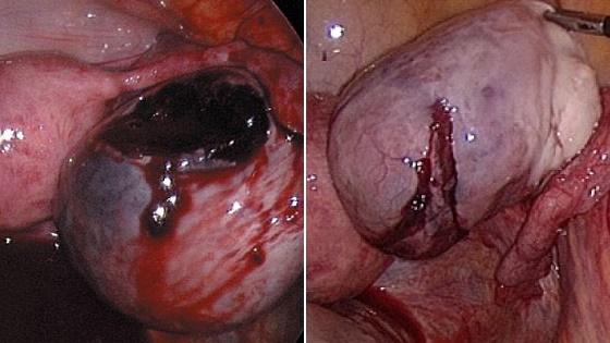 Виды повреждений яичниковой оболочки
