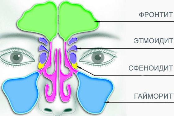Виды воспалений пазух носа в зависимости от расположения