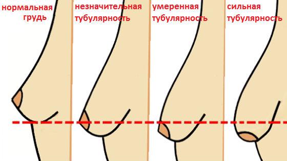 Степени выраженности тубулярности молочных желез
