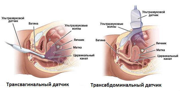 Виды УЗ-исследования органов малого таза