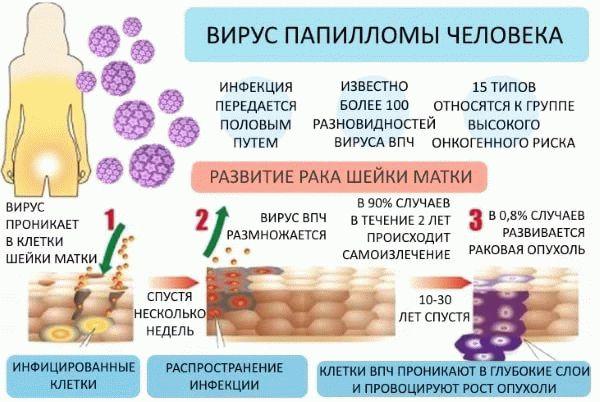 Как развивается вирус папилломы человека