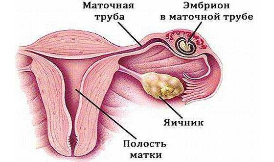 Беременность, развивающаяся в маточной трубе