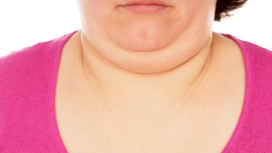 Часто причиной подбородочной складки становится лишний вес