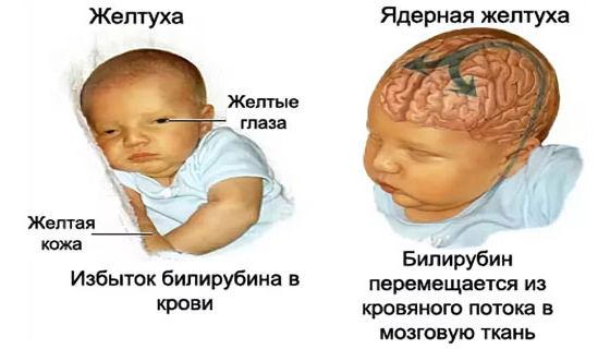 Механизм поражения ядер мозга билирубином