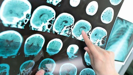 Болезни :: Что такое галакторея, причины, диагностика патологий, лечение