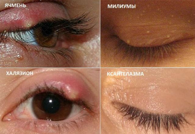 Различные заболевания кожи вокруг глаз и их проявления