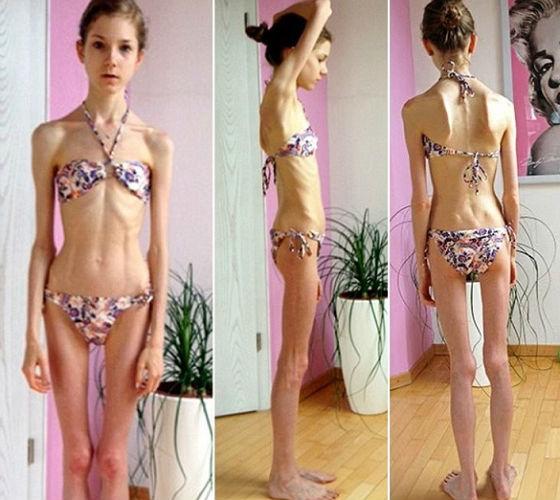 Аменорея вследствие потери значительной массы тела