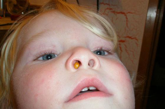 Инородное тело как причина нарушения носового дыхания