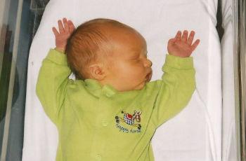 Почему у новорожденного ребенка появляется желтушка