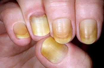 Почему ногти становятся оранжевыми 35